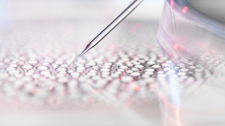 Oligodendroglioma medical research driven Oligo Nation